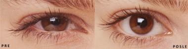 Imate suve oči