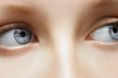 """Sindrom """"Mušice"""" u oku"""