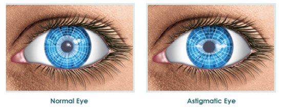Kako izgleda astigmatizam oka