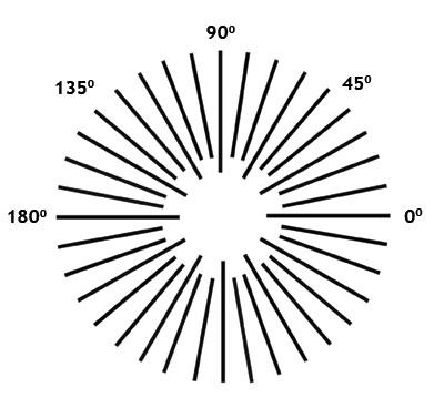 Ilustracija astigmatizma oka