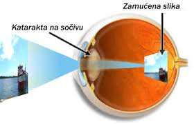 Slika kako izgleda katarakta