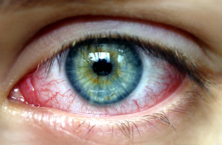 Konjuktivitis na oku