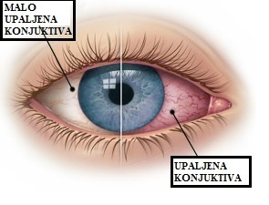 Slika prikaza kako izgleda konjuktivitis