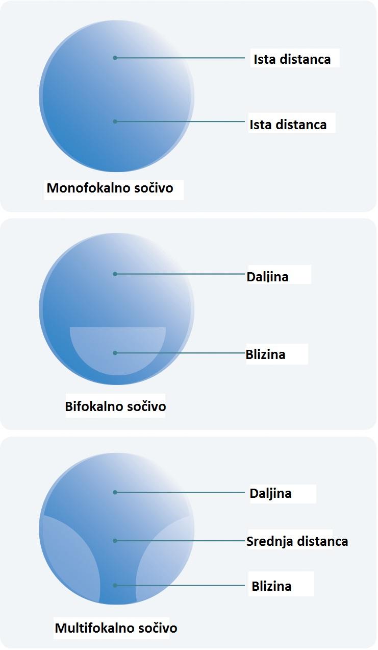 Monofokalno sočivo, bifokalno sočivo i multifokalno sočivo