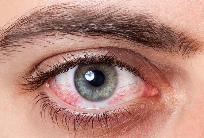 Iritacija oka
